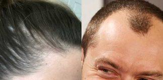 stempiatura diradamento capelli