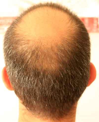 uomo caduta capelli