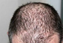 laser capelli