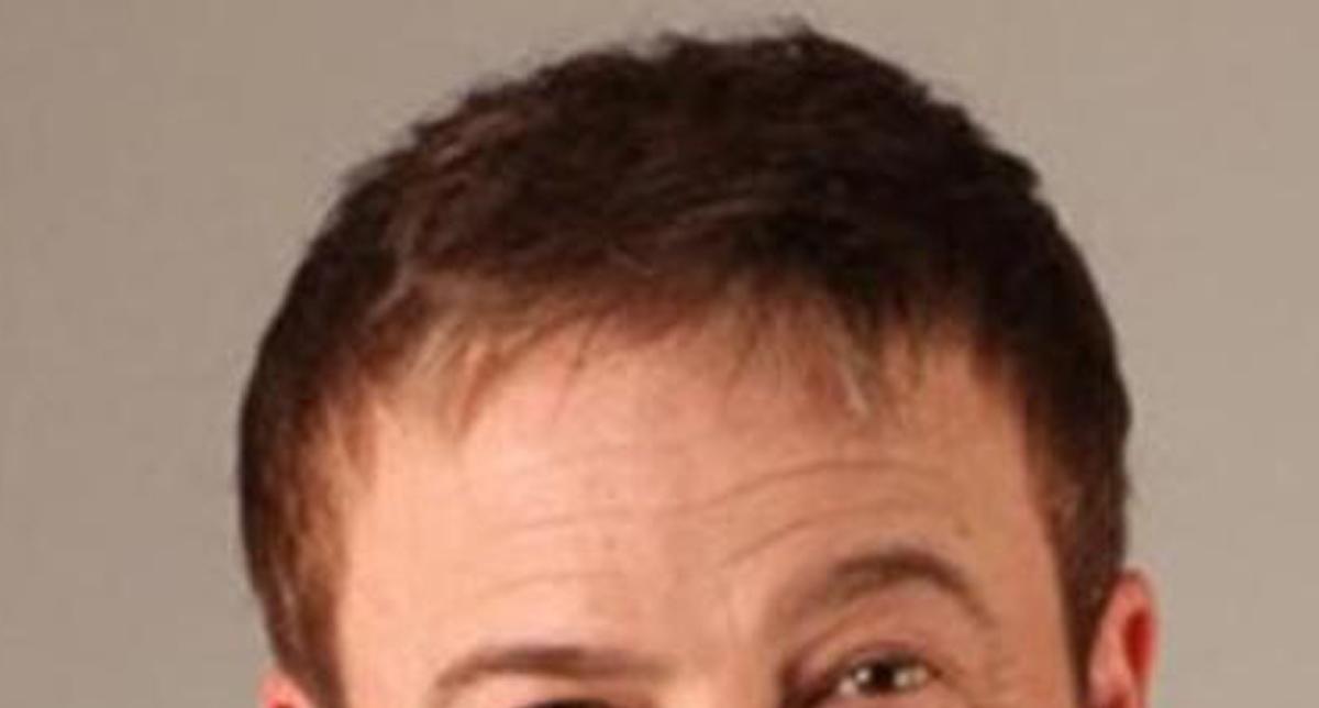 L'impianto di capelli: cos'è, le modalità e i rischi di ...