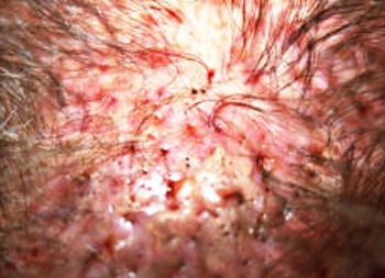 impianto capelli rigetto