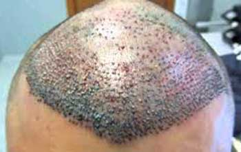trapianto fue capelli